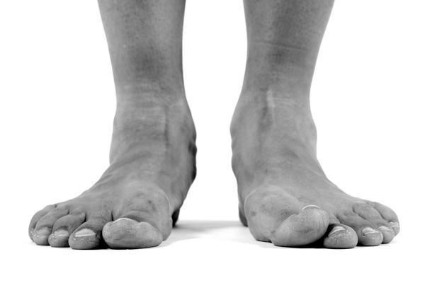 How can I relieve the pain from bunions?