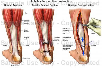 How long till I can jog/run after achillies tendon lenghtening surgery?