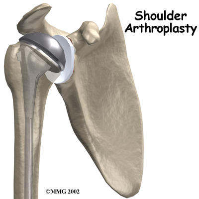 What are the different types of prostheses used in shoulder replacement surgery?