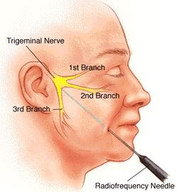 What procedures or surgeries are there to treat trigeminal neuralgia?