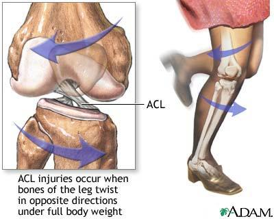 What is the treatment for anterior cruciate ligament (acl) injury?