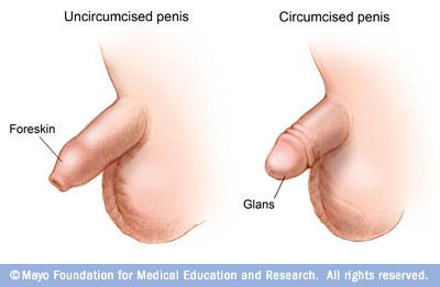 Is it more healthy for your penis to be cut or uncut?