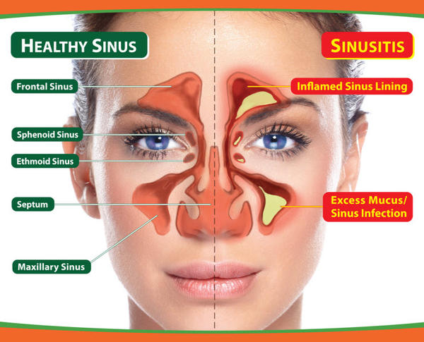 Can sleeping problems be linked to sinusitis?
