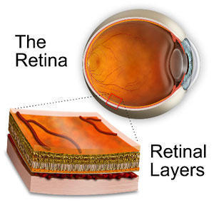Are my current vision problems caused by my retinal surgery?