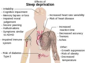 What are the effects of prolonged sleep deprivation?