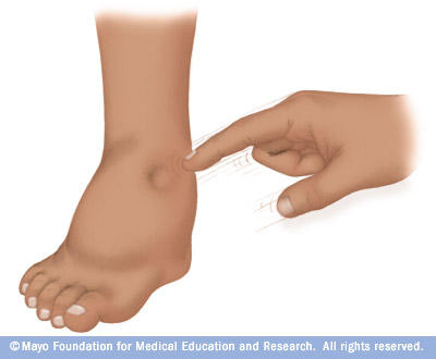 What are conditions that causes swelling in feet hands face not associated with allergic reaction?