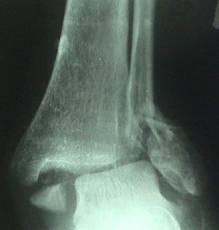 What is an ankle fracture displacement?
