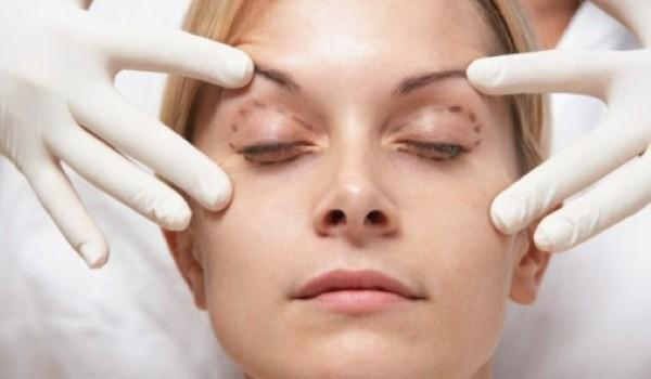 How much would eyelid surgery cost and is there a minimum age?
