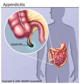 "I don't have my organs on the ""wrong"" side of the body, but is it still possible that I have my appendix on my left side?"
