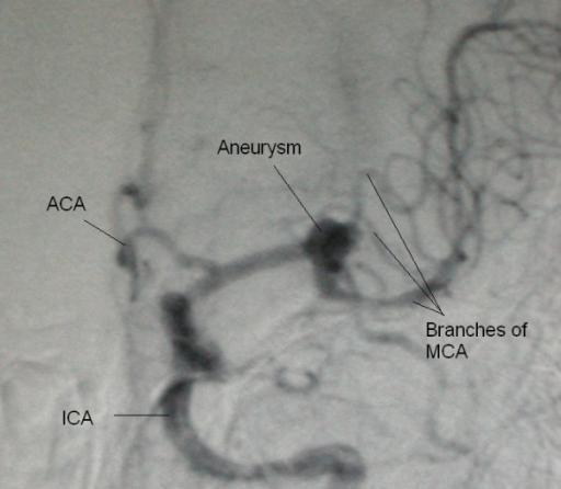 Will having a brain angiogram make my 8m aneurysm more likely to burst or will it have no effect? Thanks