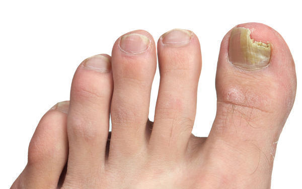 How do I treat a thin, brittle toenail with fungus?