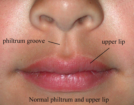What are the problemsthat can arise from a small philtrum?
