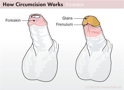 Can you tell me if there are benefits to circumcision?
