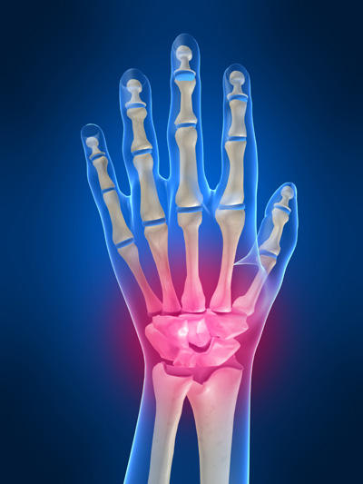 Wrist pain from weightlifting. What should I do?