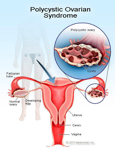 At what ages is it most common for women to get pcos ?