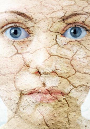 Can Accutane treat skin dryness?