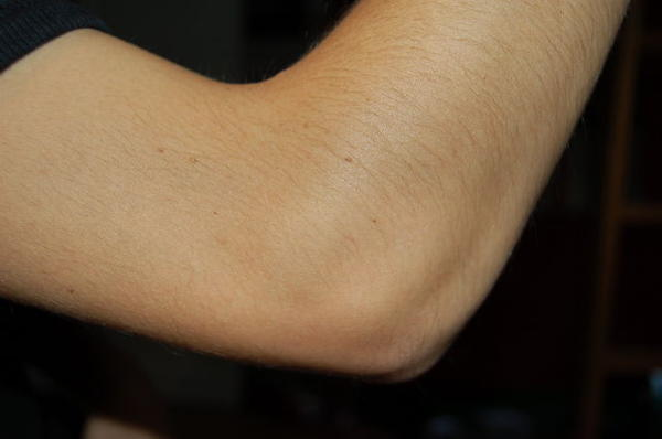 I have a sore elbow and it causes pain when I lift things.?