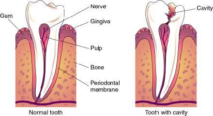 How fast can a cavity develop into the dentin of a tooth?