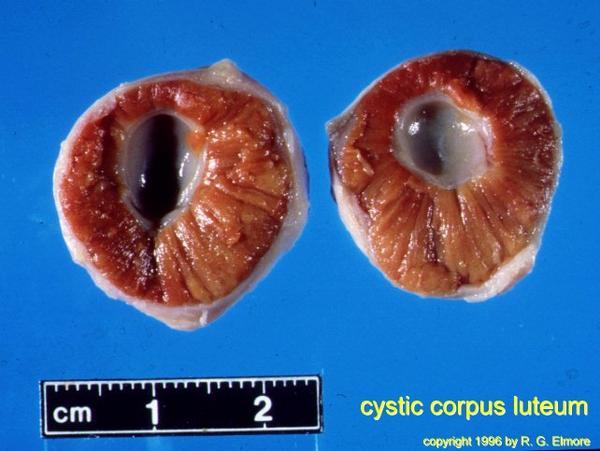 Corpus luteum cyst?