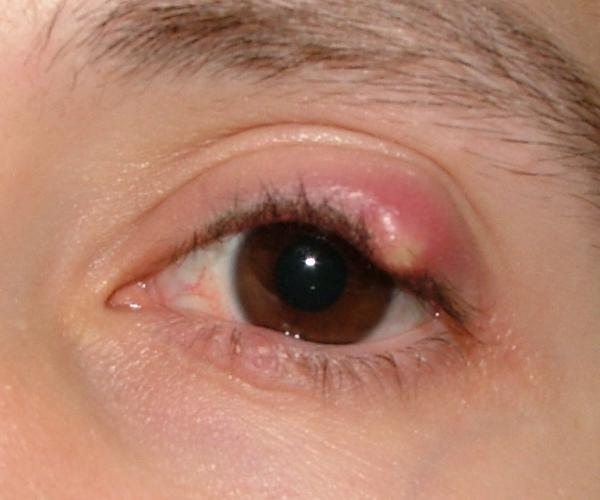 Can a chalazion get infected?