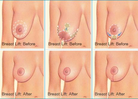 What is the best way about getting a breast lift?