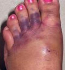 After rupture Achilles tendon surgery my fourth toe is black and blue, is that normal?