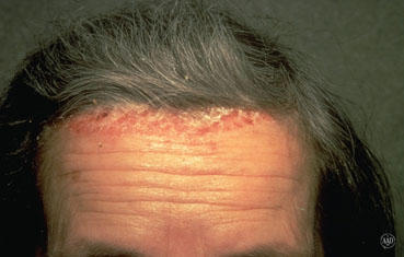 Seborrheic dermatitis not improving after treatment. What should I do now?