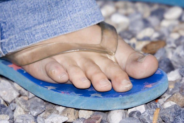 What causes hammer toes?