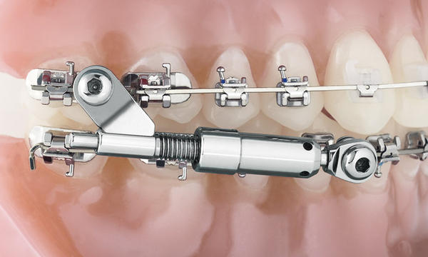 Difference between traditional vs functional orthodontics?