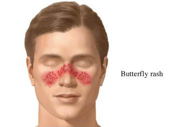 "What is the lupus ""butterfly"" rash?"