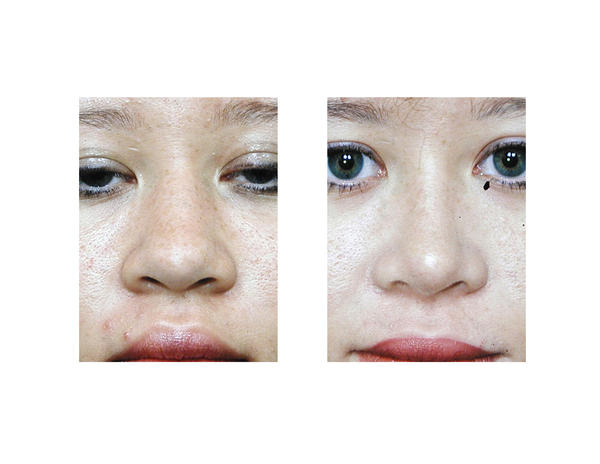 Is broad nose a common feature of people with down's syndrome?
