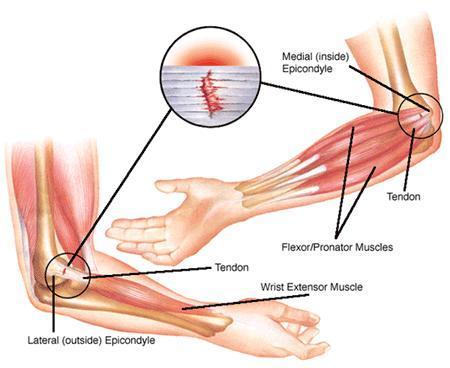 If I think I have I have epicondylitis (tendinitis), what should I do?