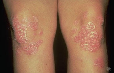 I have psoriasis, and thinking about using enbril, is it safe?