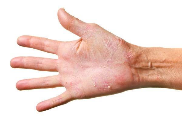 What causes a rash on the palms of your hands?
