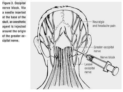 Pain around back of head on the bone  and around the ear area comes in stabs then goes?