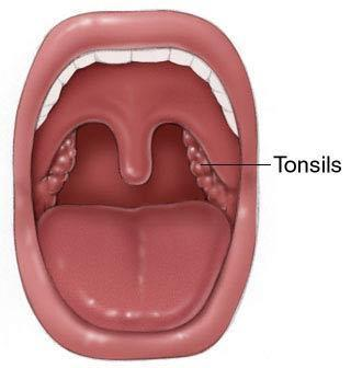 Having my tonsils and uvula removed on tuesday. Sleep apnea score is 29. Worried about uvula removal and side effects from this. Suggestions on this?