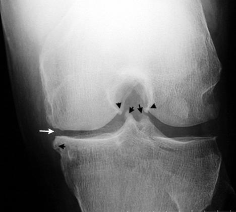 Knee show joint spaces show moderate degenerative space narrowing, more pronounced within the medial compartment with very mild marginal osteophytes?