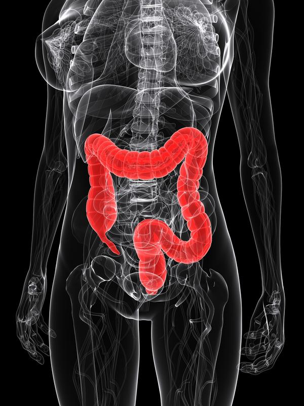 Calprotectin in stool analysis is 112.5 whn normal is 50. What causes that, how to treat it &what food to eat to avoid that? Is that colon infection?