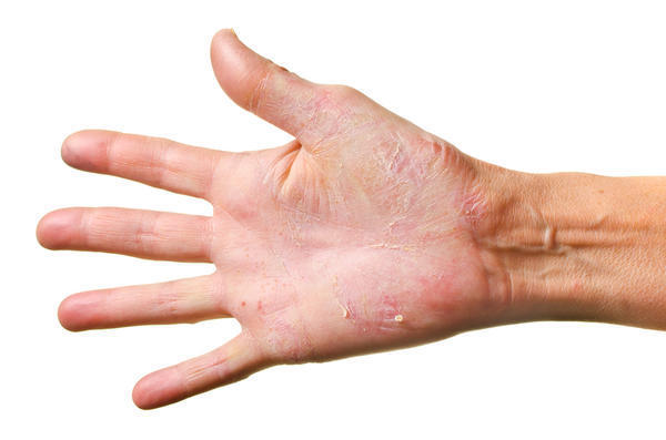 What causes rashes on palms and soles?