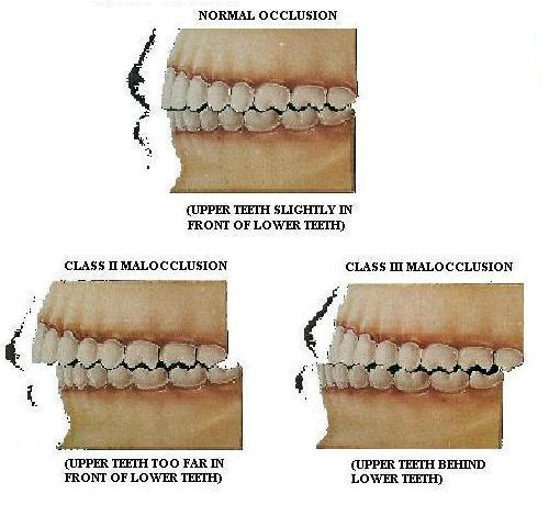 What is the definition or description of: malocclusion?