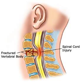 What can injure the spinal cord?