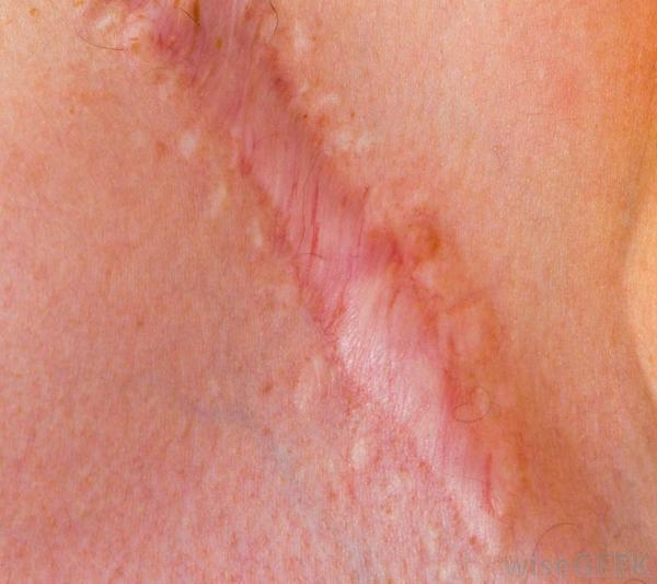 Why do some scars flatten while others turn whiter, fade or do nothing?