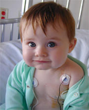 Can't eat 87 days post cord blood marrow transplant?