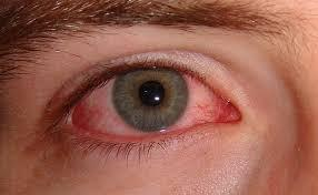 What self treatment can I do for stabbing pain in the eye?