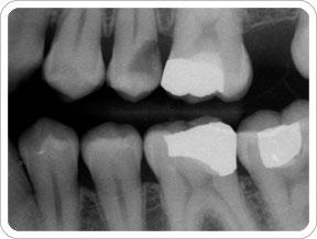 I am now due for a full mouth series x-rays. My dentist seems to have 20 year old equipment. Does not matter, right?  Digitalized x-rays all the same?