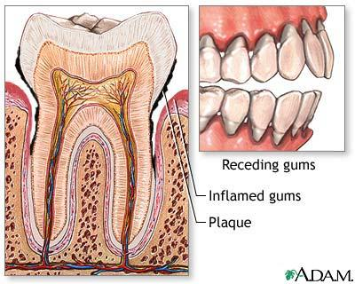 What is the difference between having gingivitis and periodontitis?