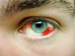 I have a burst blood vessel above my left eye ball. It has just appeared, it doesn't hurt?