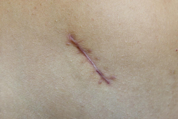 Can laser tattoo removal cause keloids?