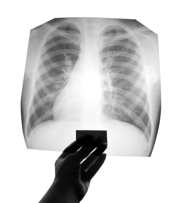 I have patchy opacity in the upper left of my lungs due to minimal ptb? What can I do doc?