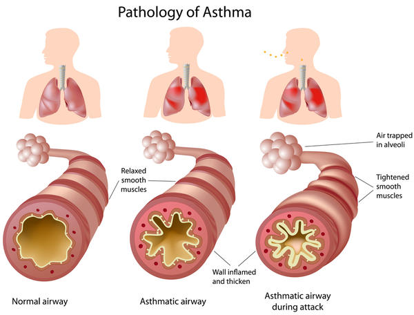 Difference between bronchial asthma, chronic bronchitis and emphysema in terms of lung?